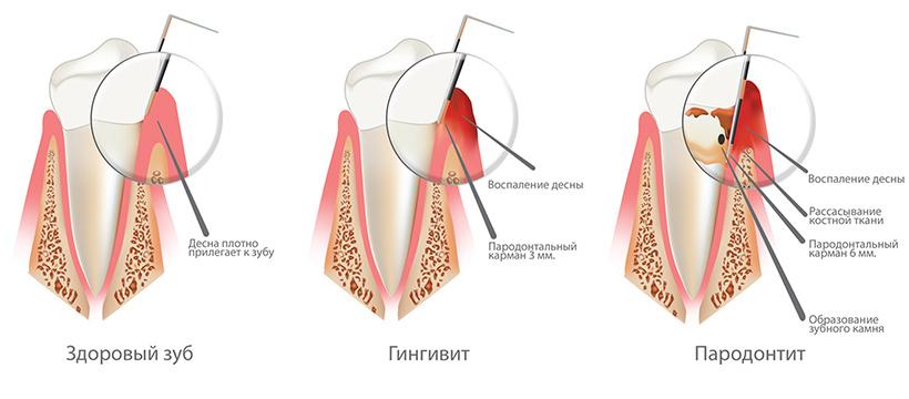 Здоровый зуб, гингивит, пародонтит